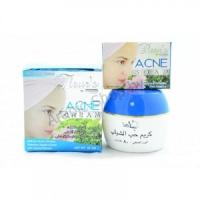 Крем для лица против Акне (Hemani Acne Cream, 80 гр) + Мыло